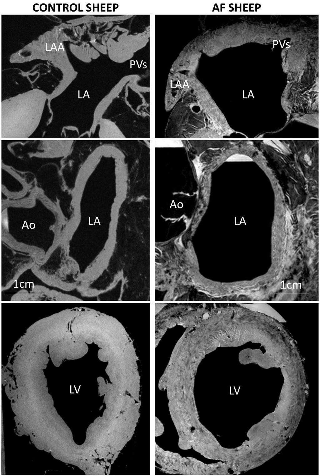 in ctl. Conclusion: High-field MRI reveals early atrial and ventricular structural remodeling in a sheep model of persistent AF.