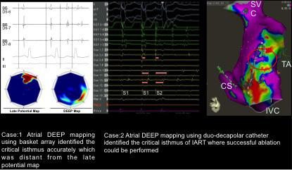 DEEP mapping could particularly be useful if the clinical arrhythmia could not be induced during ablation Objective: To assess the utility of DEEP mapping in identifying the IART ablation targets.