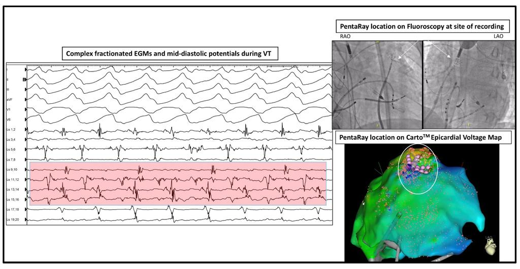 S584 atypical atrial flutter. Prior ablations included pulmonary vein isolation, rotor ablation, an anterior mitral annular (MA) line, CTI line, a roof line and posterior wall isolation.