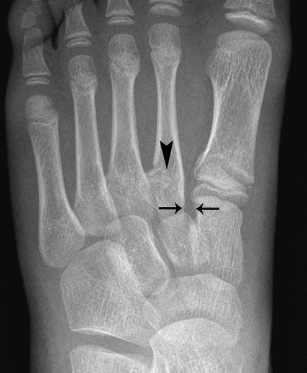 Common Injuries in the Lower limb Fig 2.37 X-ray showing Lisfranc injury. 2 Assessment and diagnosis of the injured athlete Special tests: Check dorsalis pedis artery is not compromised.