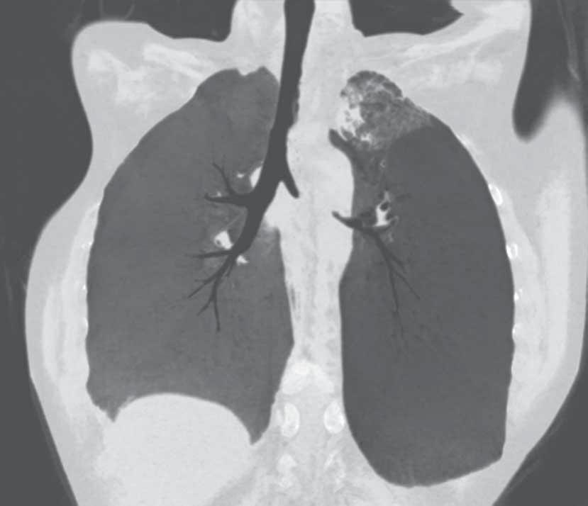 ERS MONOGRAPH INTERVENTIONAL PULMONOLOGY datasets provides several additional advantages: 1) the ability to pass stenoses virtually, 2) the view of the stenosis is not limited to a