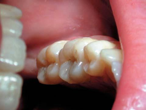 Figure 6: Occlusal pit and fissure caries on the lower left first molar which is too extensive for