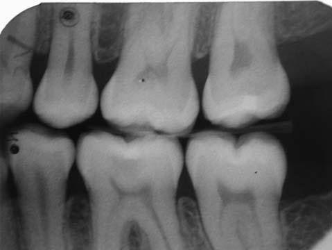 Figure 7: It is obvious that the placement of the fissure sealant 2 years previously has not been