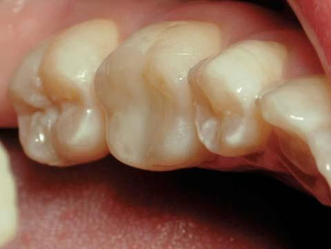 In this case the authors wanted to assess the result without the additional benefit of a glass ionomer cement restoration. Figure 12: A simple posterior composite resin was placed.