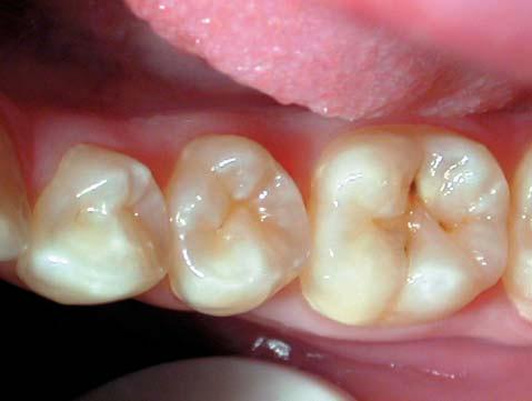 Figure 14: If it is deemed that the occlusal caries is extending more than 2mms into dentine beneath the pits and fissures then it is preferable