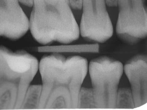 then place a restoration Figure 16: This picture was recorded during the recall of this Patient who had pit and fissure caries in both of these