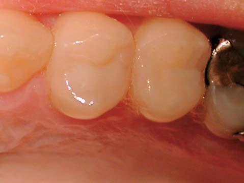 occlusally. Figure 17: The lesions in the 2 premolars shown in figure 16 had been deemed to be arrested at the one month recall visit.