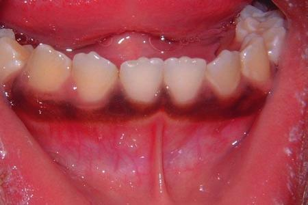 within the buccal mucosa due to the proximity of skin to the oral mucosa in this area.