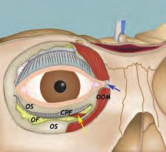 Anatomical Background 15 A B C Fig. 3.9 Three-dimensional reconstruction of the superior orbital fissure (A). Lateral (B) and medial (C) endoscopic views.