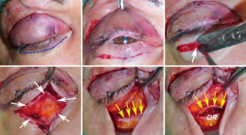 In extraperiorbital approaches, a careful dissection of the periorbita from the orbital bones is conducted and carried as far as the superior and inferior orbital fissures.