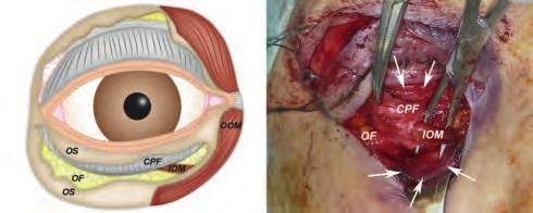 20 Endoscopic Orbital and Transorbital Approaches A B Fig. 4.7 Deep dissection in an inferior eyelid approach.