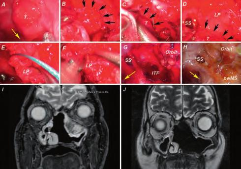 Selection of Clinical Case Histories 33 Case 4 Periorbital Recurrence of Intestinal-Type Sinonasal Adenocarcinoma Recurrence of a left sinonasal intestinal-type adenocarcinoma in close proximity to