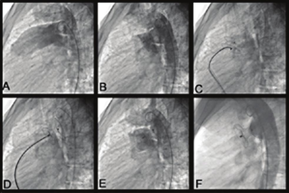 Imaging and intervention in congenital heart disease 397 P2372 Transcatheter closure of the patent ductus arteriosus using the amplatzer duct occluder in symptomatic infants with low weight F.