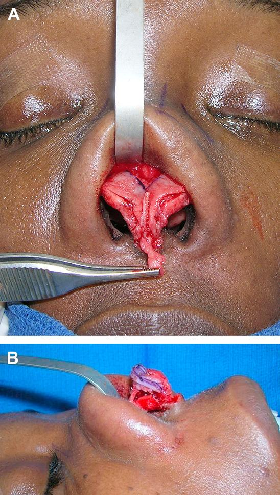 This tissue can be repositioned as a pedicled overlay soft tissue graft to improve the contour of the infratip region (Fig. 4B). MODIFYING THE NASAL DORSUM Fig. 2.