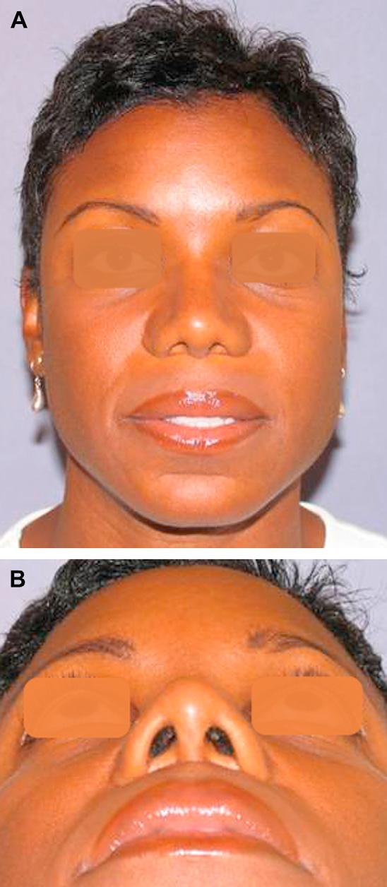 Author's personal copy Rhinoplasty in the Patient of African Descent 195 The author has found it to be an aesthetically exceptional material, with ease of sculpting, excellent blending with the
