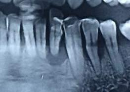 A final diagnosis of Generalized Chronic Periodontitis with severe bone loss on the mandible was established.