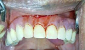 One week after denture was inserted and