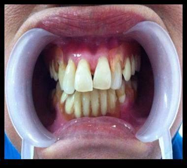 functional, stability and retention of the denture. CASE A 66 years old female, who had few teeth with a chief complaint in aesthetic aspect and difficulty of chewing.
