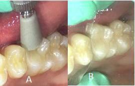 caries, or fracture.