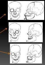 Negroid Mongoloid Caucasoid CONCLUSION Radiography has an important role in forensic identification.