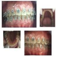 Gingival overgrowth during orthodontic treatment is generally recognized as gingival inflammation caused by the accumulation of plaque and bacteria, also caused by the difficulty of maintaining oral