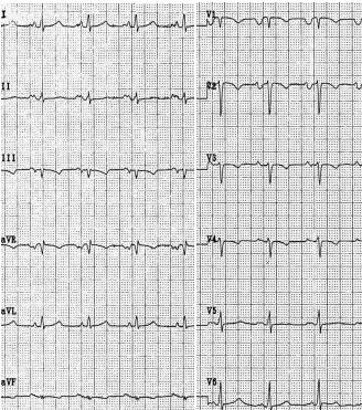 I- Abnormalities of ECG Waves and Segments P Wave Abnormalities: left Atrial