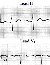 12 seconds or more Notched upright P wave duration in leads I, II, V4 to V6