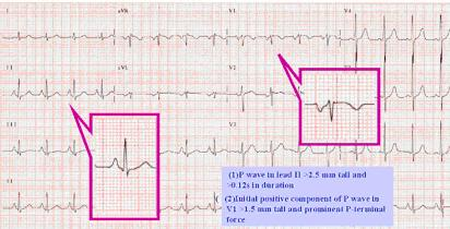 I- Abnormalities of ECG Waves and Segments P Wave Abnormalities: Biatrial Enlargement Large biphasic P wave in V1 with initial positive portion of the P wave greater than 1.