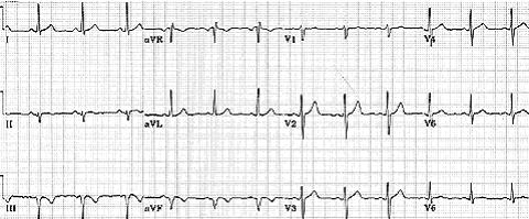 I- Abnormalities of ECG Waves and Segments QRS Abnormalities: Q