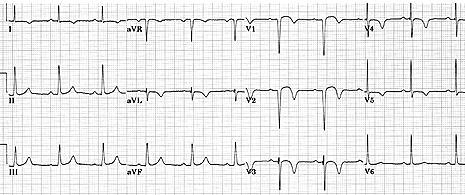 Infarction by Presence of Q-Wave V1, V2 Inferior MI Anterior