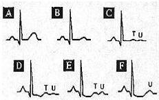 I- Abnormalities of ECG Waves and Segments T Wave abnormalities T