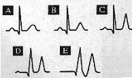Ischaemia: T wave is inverted and symmetrical.