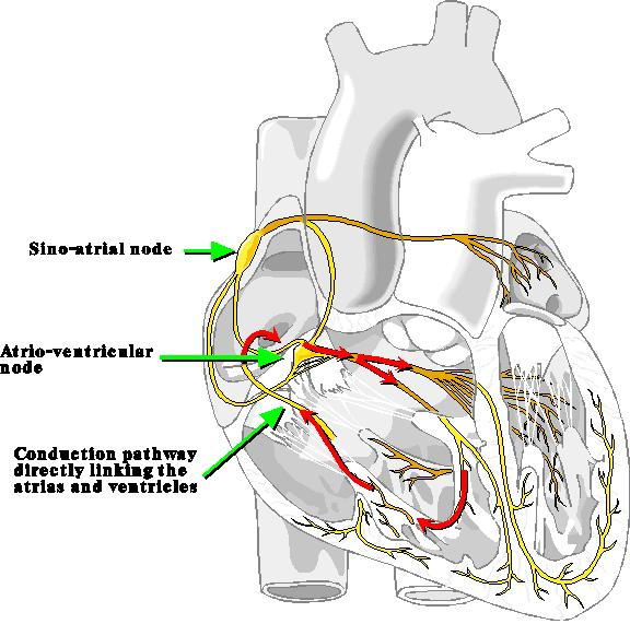 Pacemaker/Conduction Abnormalities Accessory Pathway or Wolf Parkinson White (WPW) Syndrome Abnormal, congenital extra pathways between the atria and ventricles or/and conduction tissue, and can
