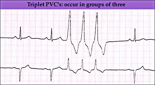 II- Pacemaker Abnormalities Ventricular Abnormalities Nonsustained Ventricular Tachycardia Runs of repetitive premature ventricular impulses