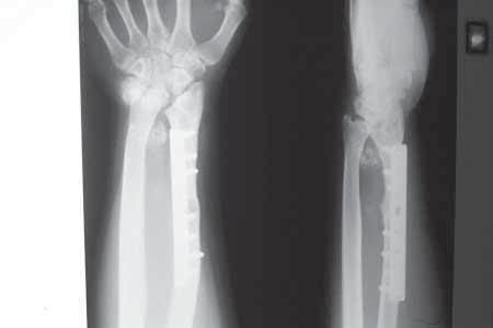 903 Fig. 3. Wrist arthrodesis in case 3 with graft resorption. Fig. 4a. Fig. 4b. Fig. 4. (a) Follow-up X-ray after 3 years showing localised soft tissue recurrence with peripheral calcification.