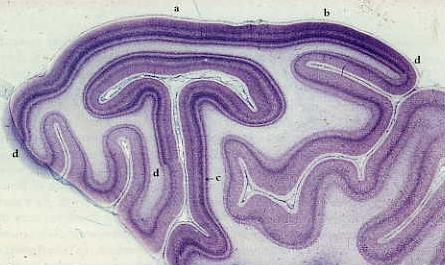 V1 is also called Striate (striped) cortex 20 http://neuro.med.