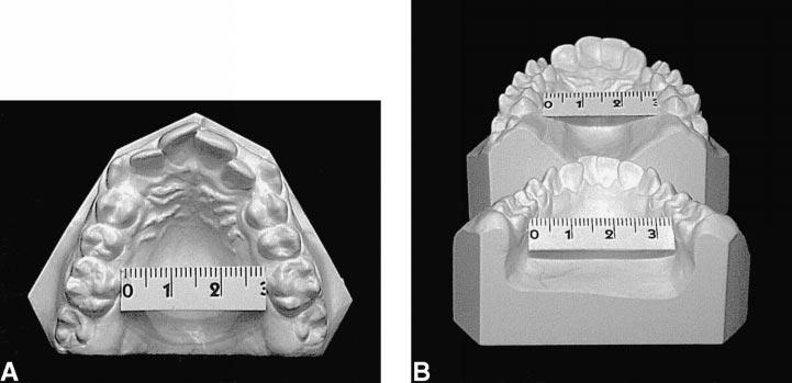 RAPID PALATAL EXPANSION AND CERVICAL TRACTION 91 FIGURE 5. Pretreatment model casts at 12 years of age.