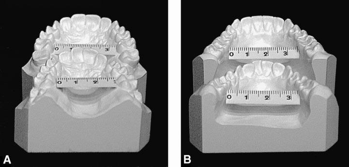 92 LIMA, LIMA FIGURE 7. Model casts. (A) Posterior maxillary occlusal view at 12 and 30 years of age. (B) Posterior mandibular occlusal view at 12 and 30 years of age.