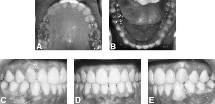 RAPID PALATAL EXPANSION AND CERVICAL TRACTION 93 FIGURE 9. Long-term posttreatment intraoral photographs at age 30. TABLE 2.