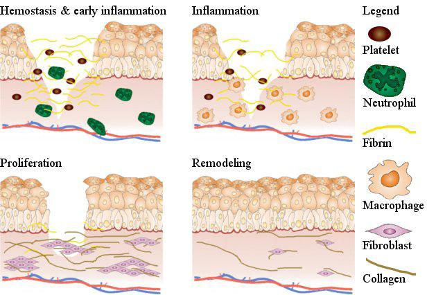 Introduction include increased amounts of collagen compared to normal scars and myofibroblasts which persist in mature HTS as opposed to normal mature scars 10.