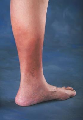 No visible or palpable signs of venous