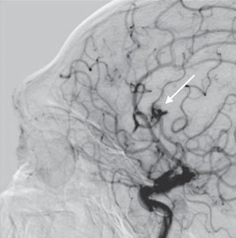 perdense area that became very hyperdense after application of contrast medium (Fig. 1).