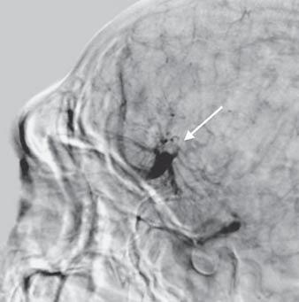 sagittal sinus. The radiologist suggested it could be an AVM or DVA.