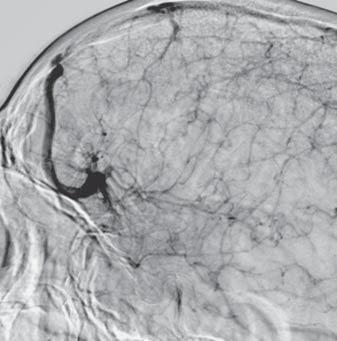 Radially arranged small veins were drained into this venous structure, showing a characteristic caput medusa structure.