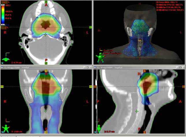 Benefits of IMRT Allows the simultaneous irradiation