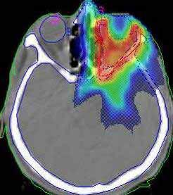 Intensity Modulated Radiation Therapy Generates
