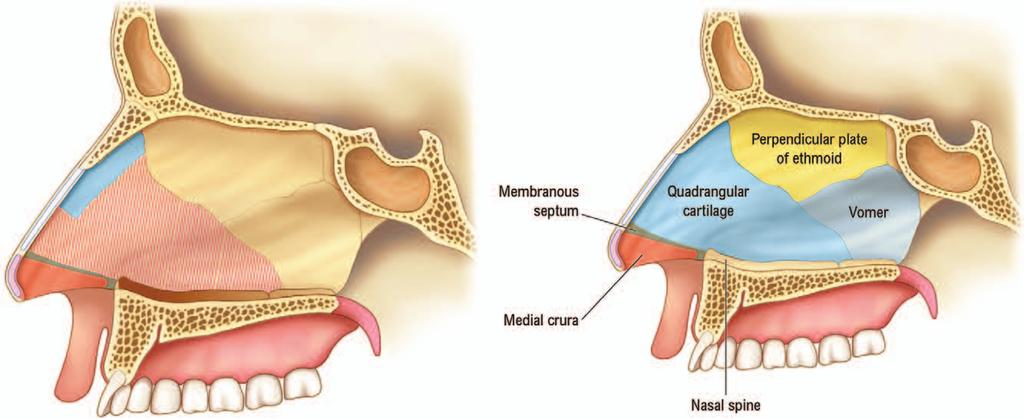 In this series, a majority of patients had already undergone a traditional septoplasty but were left with persistent nasal obstruction.