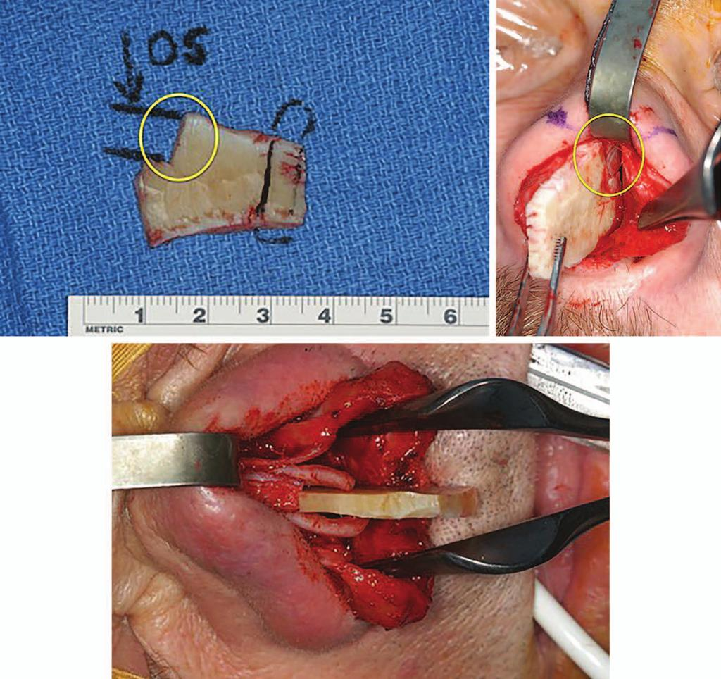 Volume 137, Number 1 Extracorporeal Septoplasty Fig. 5. (Above, left) Example of how the original dorsal septum (OS) will fit like a puzzle piece to the carved flat piece of rib acting as a neoseptum.
