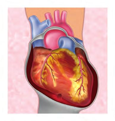 Cardiac tamponade can result from penetrating or blunt injuries that cause the pericardium to fill with blood from the heart, great vessels, or pericardial vessels. C.