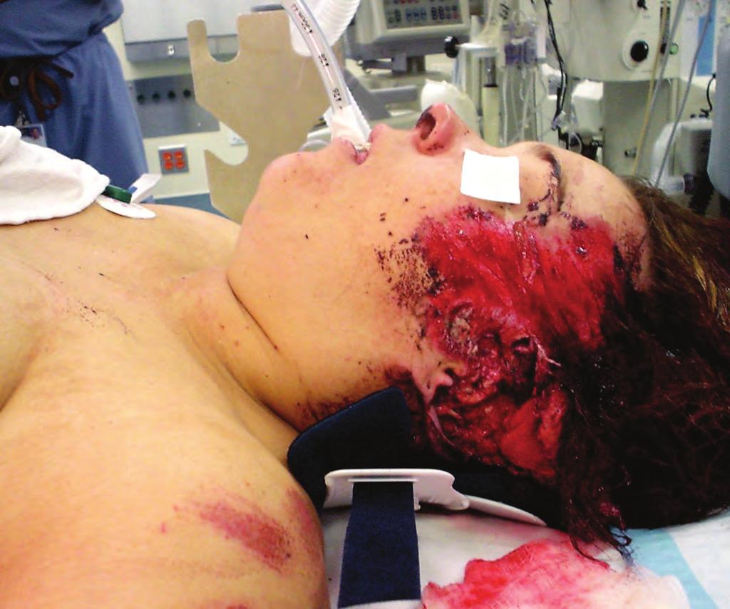 6 HEAD TRAUMA The primary goal of treatment for patients with